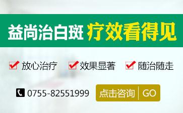 深圳白癜风好治吗